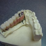 #17 - 22 PFG Implant Bridge